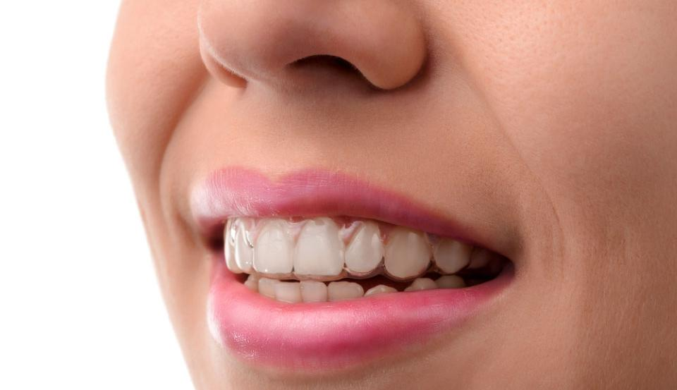 Invisalign cleaning tips in Sarnia Ontario